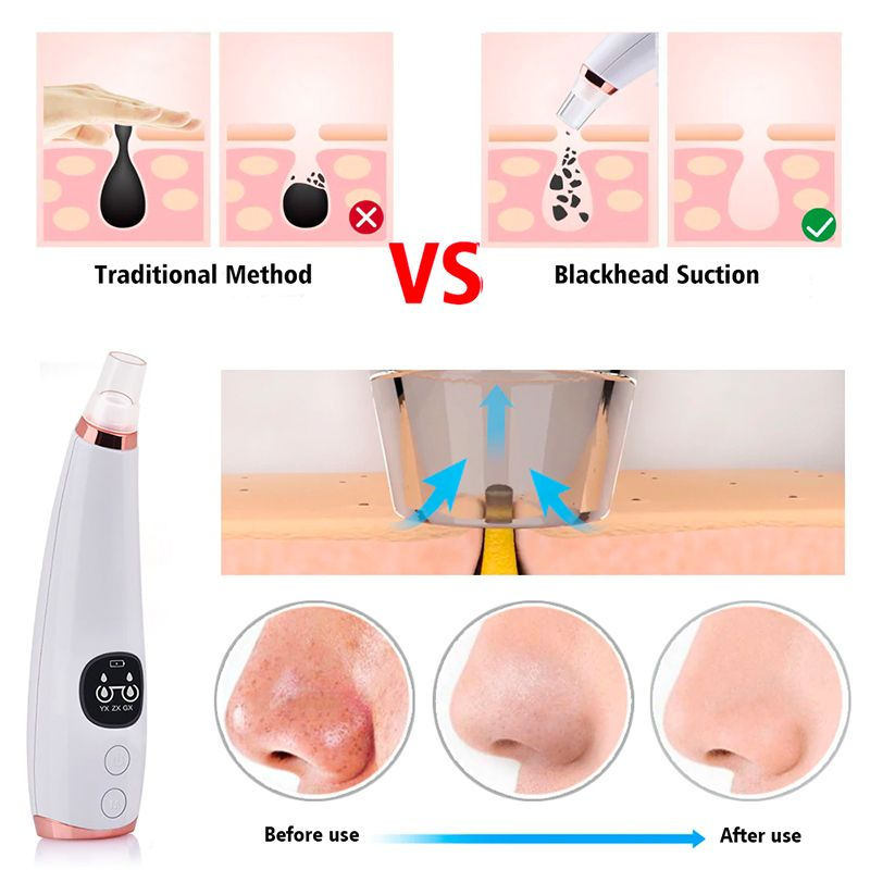 Blackhead Remover_0000s_0004_Layer 13.jpg